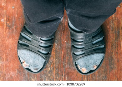Holey socks the poor
