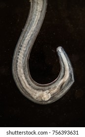 Hookworm under the microscope