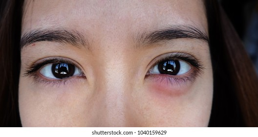 Hordeolum with an asian. infection at the lower eyelid. The inflammation causes redness, swelling, heat and eventually pus.