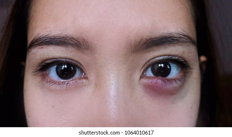 Hordeolum on an Asian woman. infection at the lower eyelid. The inflammation causes redness, swelling, heat and eventually pus.