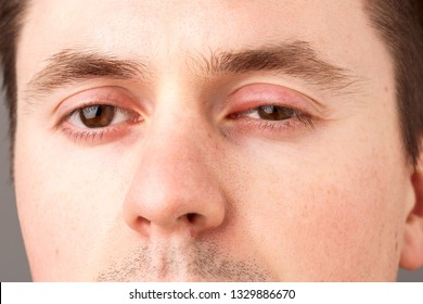Hordeolum on man. infection at the lower eyelid. The inflammation causes redness, swelling, heat and eventually pus.