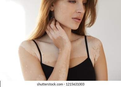 Horizontal close up portrait of attractive young female with vitiligo affected skin posing at white wall in black tank top, holding hand on her neck. People, beauty, cosmetology and depigmentation