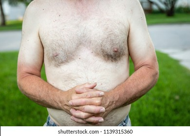 horizontal image of  the torso of a shirtless caucasian white male with sun burned arms folded across his chest.