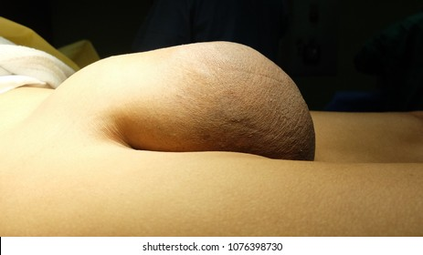 Inguinal Hernia Images, Stock Photos & Vectors | Shutterstock
