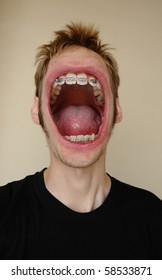 A huge screaming mouth with braces on his teeth, yelling his face off.