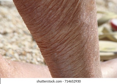 human aging, sagging and aged skin of the human body