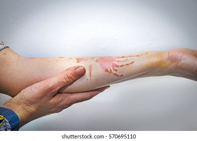 Human arm with severe burns on the skin
