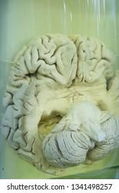 Human brain in formalin solution closeup