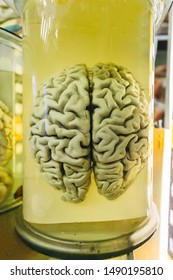 Human brain in glass jar with formaldehyde for medical studies