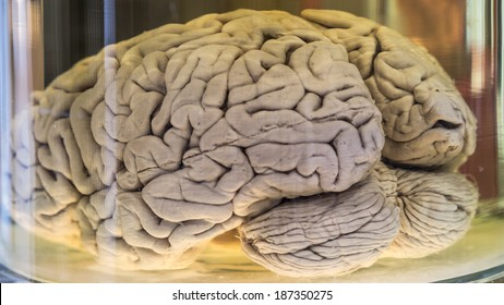 Human brain in a jar (real specimen)