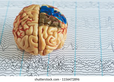 Human brain model on background of brain waves from electroencephalography