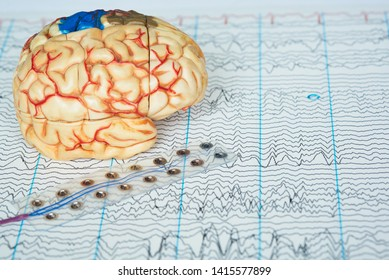 Human brain model and subdural electrode recording brain waveson background of brain waves from electroencephalography