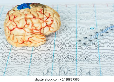 Human brain model and subdural electrode recording brain waves on background of brain waves from electroencephalography