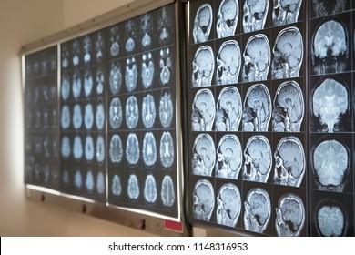 Human brain MRI on lightbox in medical office