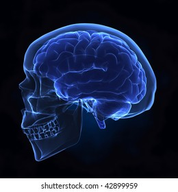 Human brain with skull x-ray left view