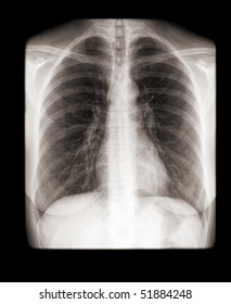human chest with normal lungs on x-ray