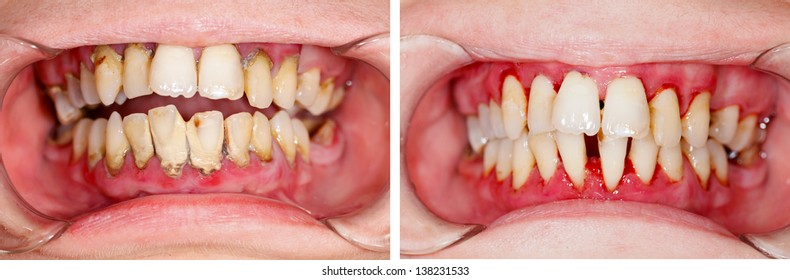 Human denture on dental treatment - part of beforeafter series.