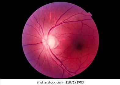 Human eye anatomy taking images with Mydriatic Retinal cameras.Medical image of ocular fundus, human retina.