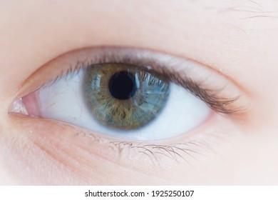 Human eye, left. Photo of a raspberry plan of the iris.