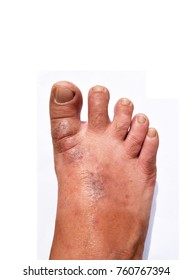The human feet is a fungal skin lesions isolated on white background , Athlete's foot , Dermatophytes or Tinea pedis , candida albicans