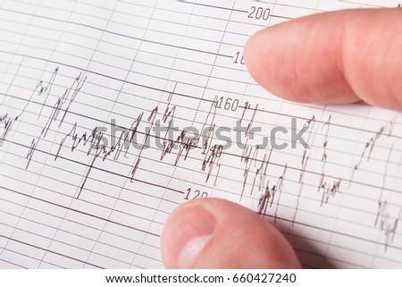 human hand medical chart closeup 450w 660427240 human hand medical chart closeup medical stock photo (edit now