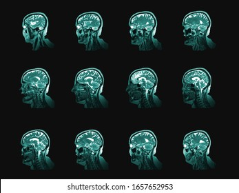 Human head and brain computer tomography image set. Vertical partition of medical examining or anatomy study