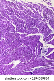 Human heart lipomatosis (lipomatosis cordis, fatty heart) section under the microscope.