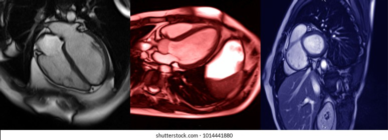 Human heart, MRI image. Different planes of heart imaging