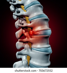 Human herniated disk concept and spine pain diagnostic as a human spinal system problem and anatomy symbol with the skeletal bone structure and discs as a 3D illustration.