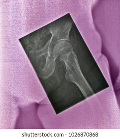 Human hip, x ray image. Hip region is isolated from the rest of pelvis