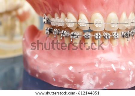 Fantastic Human Jaw Teeth Model Metal Wired Stock Photo Edit Now 612144851 Wiring 101 Orsalhahutechinfo