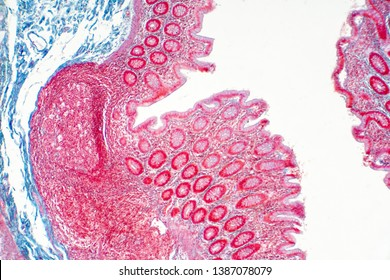 Human large intestine tissue under microscope view. Histological for human physiology.