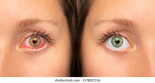 Human red eye before and after eyedrop treatment