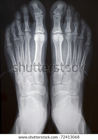 Human Right Left Foot Ankle Xray Stock Photo Edit Now 72413068