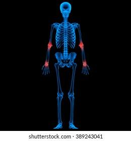 Human Skeleton Bone Joint Pains