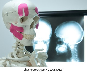 human skeleton model with kinesiology tapes on head - human head pictures on radiogram in background