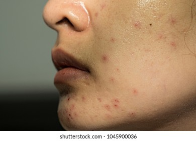 Human skin Acne with Acne problems on the skin in full frame