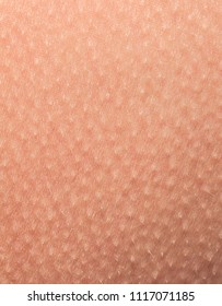human skin covered with small goosebumps of cold and fright close-up