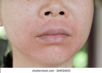 Allergic Reaction Images, Stock Photos & Vectors | Shutterstock