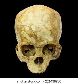 Human Skull Fracture(top side,apex)(Mongoloid,Asian) on isolated background