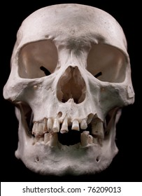 Human skull from the front