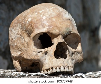 human skull missing lower jaw