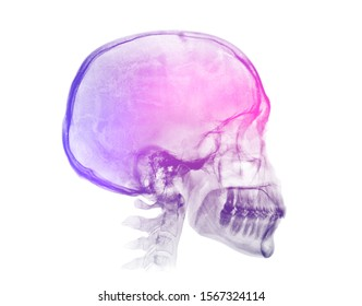 Human skull X-ray image isolated on a white background