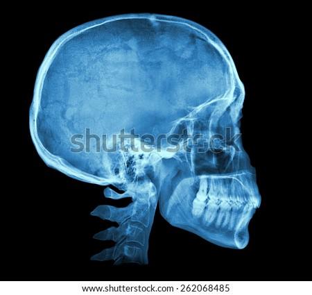 Human Skull Xray Image Isolated On Stock Photo (Edit Now) 262068485 ...