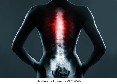 Human spine in x-ray, on gray background. The chest spine is highlighted by red colour.