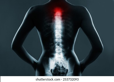 Human spine in x-ray, on gray background. The neck spine is highlighted by red colour.