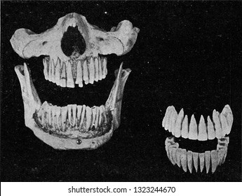 Human teeth on the jaw and the two rows of isolated teeth, vintage photo. From the Universe and Humanity, 1910.