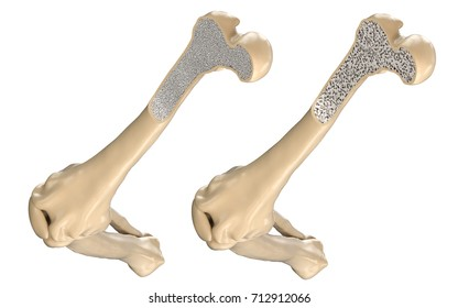 Human Thigh Bone - Normal and with Osteoporosis. 3D illustration