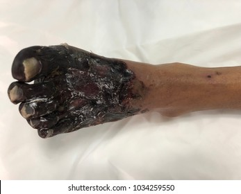 Human tissue skin with gangrene foot disease.