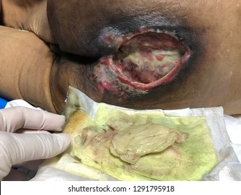 Human tissue skin with infected wound and pressure sore of patient in hospital. Medical and healthcare concept.